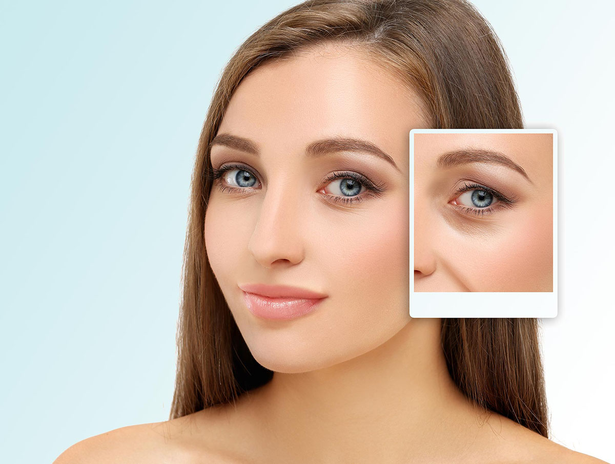 Cosmetic Eye Surgery at Optimax